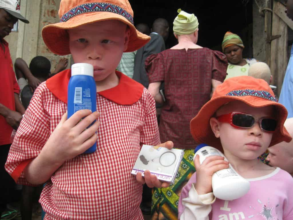 Kids with albinism in hats