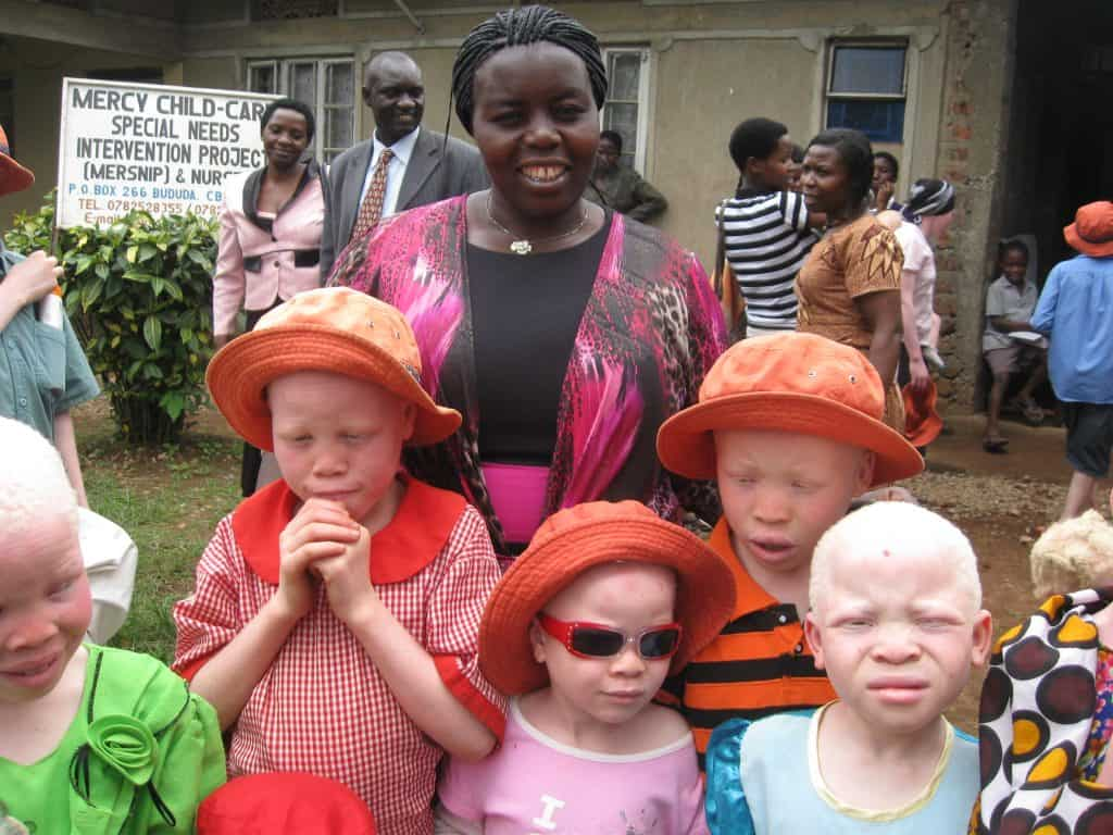 Joyce Wanda with kids at albinism workshop